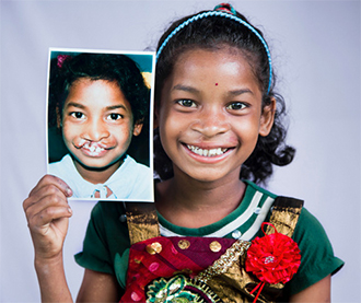 Operation Smile, before and after, Assam Renuka