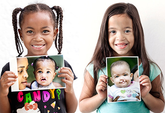 Operation Smile, before and after